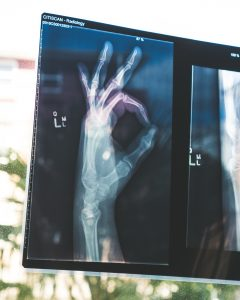 X-ray scan of a hand making the OK sign